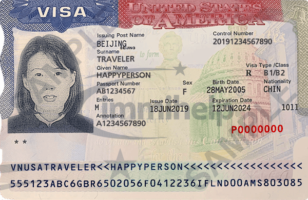 01 visa